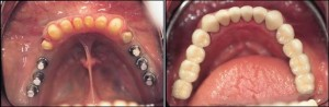 Dental Implants Case 21